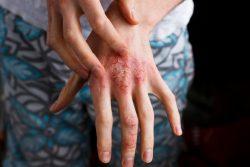 Нейродермит: симптомы, лечение
