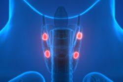 Гиперплазия паращитовидных желез: причины, симптомы, как лечить