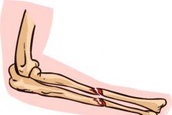 Костная мозоль после перелома: почему и как образуется