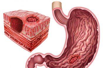 Каллезная язва желудка: чем опасна, как от нее избавиться
