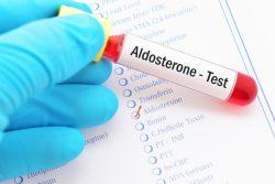 Вторичный гиперальдостеронизм: симптомы, диагностика, лечение