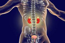 Первичный гиперальдостеронизм: причины, симптомы