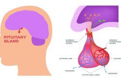 Болезнь Симмондса: признаки, принципы лечения