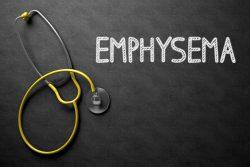 Эмфизема легких: что это такое, симптомы, лечение