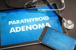 Аденома паращитовидных желез: признаки, принципы лечения