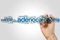 Аденокарцинома легких: симптомы, принципы диагностики и лечения, прогноз