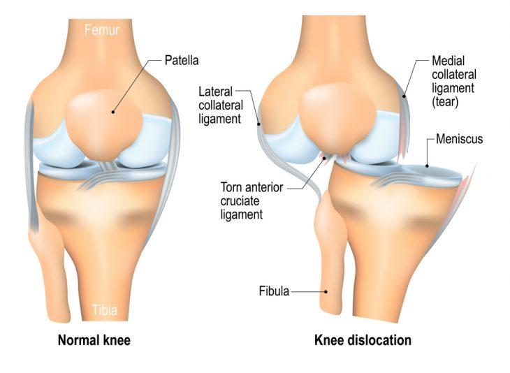 Нестабильность коленного сустава лечение опухло колено и не болит