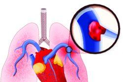 Тромбоэмболия легочной артерии: симптомы, неотложная помощь