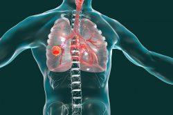 Гамартома легкого: симптомы, лечение