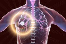 Фиброзно-кавернозный туберкулез легких: особенности течения, принципы лечения