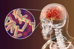 Туберкулез головного мозга: чем проявляется, как лечить, прогноз