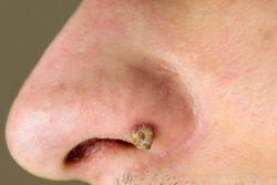 Папиллома в носу: симптомы, методы лечения