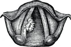 Папилломы гортани: причины, признаки, принципы лечения