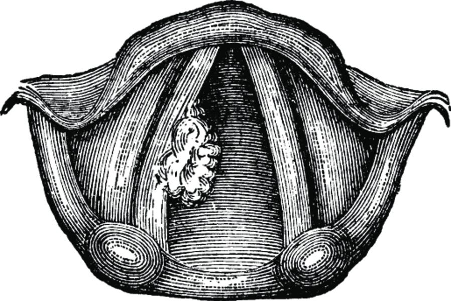Папиллома гортани - причины возникновения папилломы и возможные осложнения папилломы в гортани