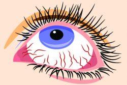 Воспаленные глаза: причины, симптомы