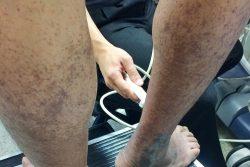 Ультразвуковая допплерография сосудов нижних конечностей: показания и противопоказания