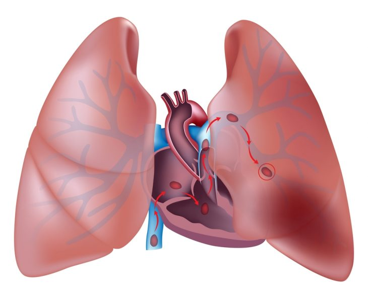 Инфаркт легкого диф диагностика