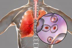 Пневмоцистная пневмония у ВИЧ-инфицированных: особенности течения и лечения