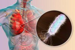 Внутрибольничная пневмония: возбудители, особенности течения и лечения