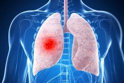 Туберкулома легких: что это, последствия