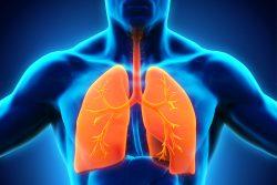 Лимфома средостения: особенности течения, современные методы лечения