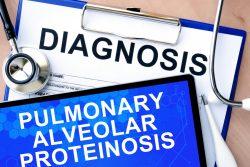 Альвеолярный протеиноз: причины, признаки, принципы лечения