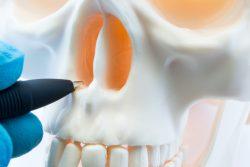 Искривление носовой перегородки: эндоназальная септопластика