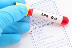 Анализ крови на антинуклеарные антитела: подготовка к исследованию, расшифровка