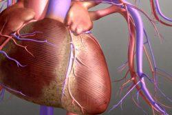 Атеросклеротический кардиосклероз: особенности течения и лечения