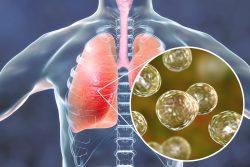 Грибковая пневмония: особенности течения и лечения