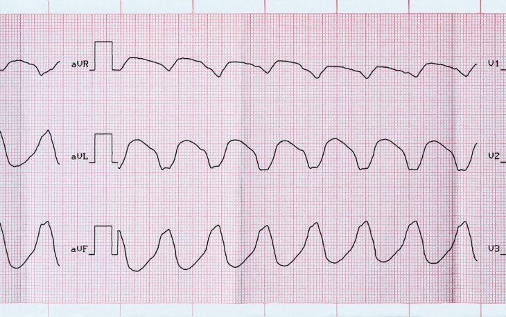 Желудочковая пароксизмальная тахикардия симптомы лечение и экг