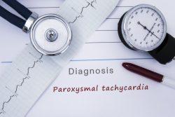 Пароксизмальная тахикардия: симптомы, лечение