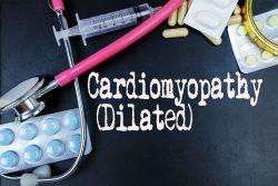 Дилатационная кардиомиопатия: симптомы, диагностика, лечение