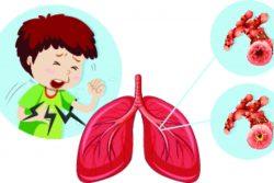 Бронхообструктивный синдром у детей: почему возникает и как проявляется