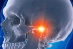 Артрит ВНЧС: причины, симптомы, лечение