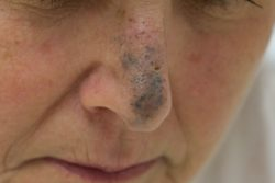 Голубой невус: особенности течения, принципы лечения