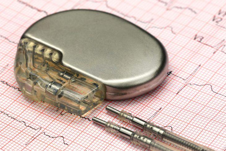Мас в кардиологии. Синдром Морганьи-Адамса-Стокса: причины, признаки, диагностика, помощь и лечение Синдром морганьи адамса стокса рекомендации