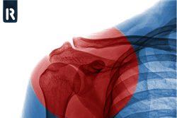 Плечелопаточный периартрит: симптомы и лечение