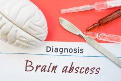 Абсцесс мозга: симптомы, лечение
