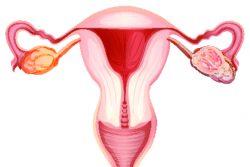 Почему возникает и как проявляется и лечится гипоплазия яичников?