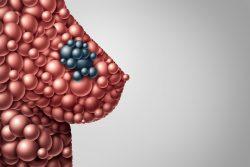 Киста молочной железы: причины и лечение