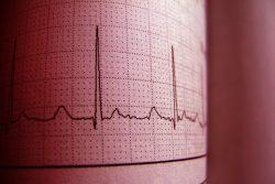 Синдром удлиненного интервала qt: почему возникает, чем проявляется, как лечить