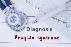 Синдром Бругада: причины, симптомы, ЭКГ-признаки, принципы лечения
