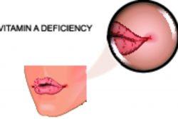 Гиповитаминоз витамина А: симптомы, лечение