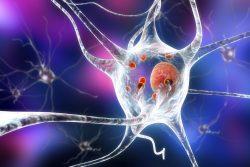 Деменция с тельцами Леви: особенности течения, принципы лечения