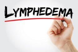 Лимфостаз (лимфедема) руки после мастэктомии: причины, принципы лечения