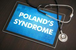 Синдром Поланда: признаки, принципы лечения