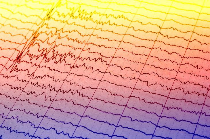 Все о проведении ЭЭГ энцефалограммы головного мозга